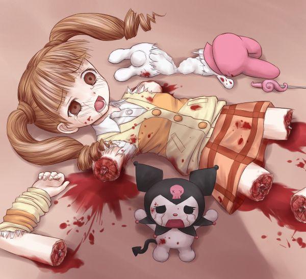 【エグゾディア】女の子が四肢切断されてる真っ最中な二次グロ画像【27】