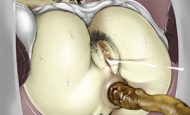 【GWだから】正に黄金ッ!!素晴らしい一本グソを出してる美少女達の二次スカトロ画像