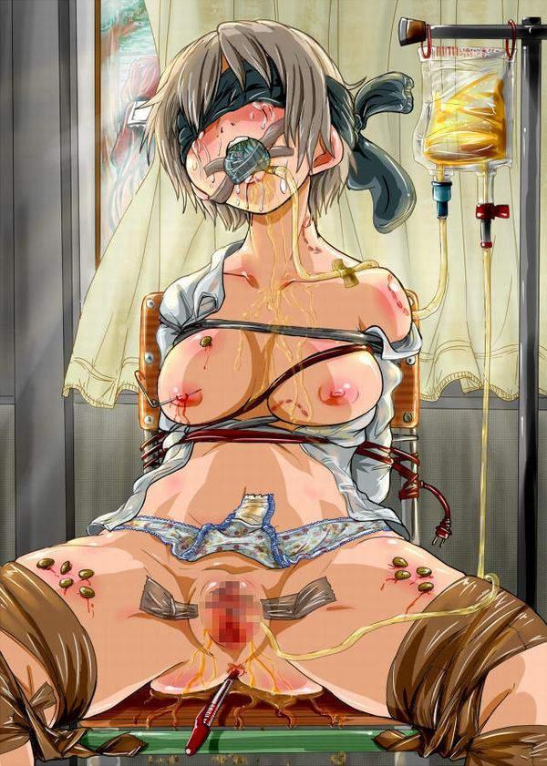 【死ぬ事は避けられない】女の子がガチで拷問されてる二次リョナ画像【12】